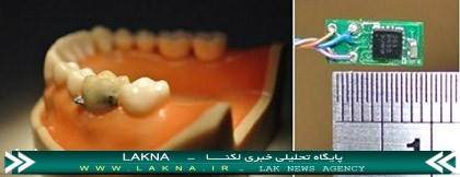 tooth.sensor